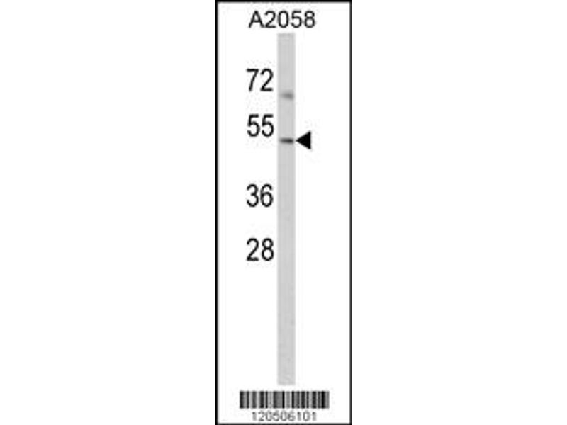 Western Blotting (WB) image for anti-ACTR3 antibody (ARP3 Actin-Related Protein 3 Homolog (Yeast)) (C-Term) (ABIN2157570)