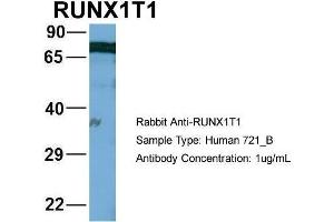 Image no. 1 for anti-Runt-Related Transcription Factor 1, Translocated To, 1 (Cyclin D-Related) (RUNX1T1) (Middle Region) antibody (ABIN1108915)