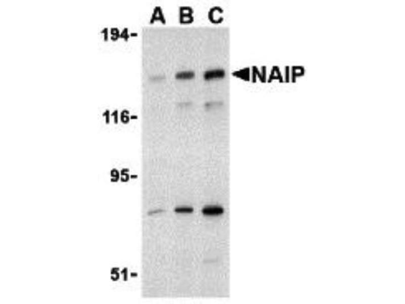 Western Blotting (WB) image for anti-NLR Family, Apoptosis Inhibitory Protein (NAIP) (C-Term) antibody (ABIN4337756)