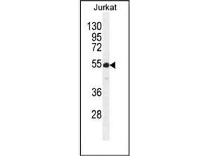 Western Blotting (WB) image for anti-RBPJL antibody (Recombination Signal Binding Protein For Immunoglobulin kappa J Region-Like) (AA 15-44) (ABIN954488)
