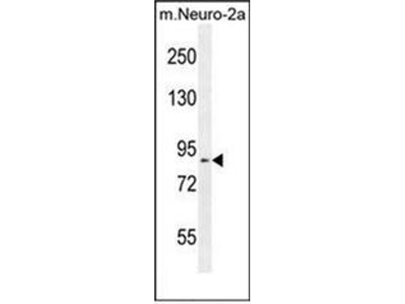 Western Blotting (WB) image for anti-DEAD/H (Asp-Glu-Ala-Asp/His) Box Polypeptide 11 (DDX11) (AA 663-691), (Middle Region) antibody (ABIN951862)