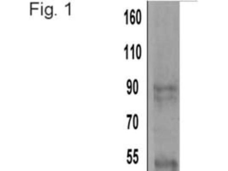 Western Blotting (WB) image for anti-Actinin, alpha 4 (ACTN4) antibody (ABIN261463)