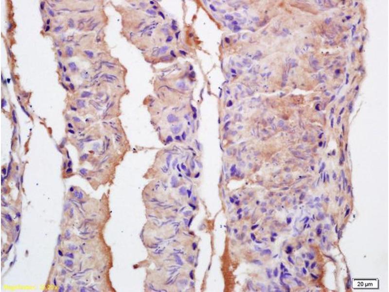 Immunohistochemistry (IHC) image for anti-EPH Receptor A10 (EPHA10) (AA 150-200) antibody (ABIN1714266)