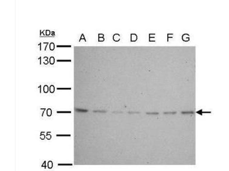 Western Blotting (WB) image for anti-Lamin B2 (LMNB2) (Center) antibody (ABIN443145)