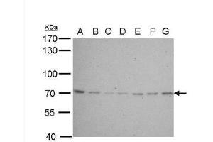 Western Blotting (WB) image for anti-Lamin B2 (LMNB2) (Center) antibody (ABIN443145)