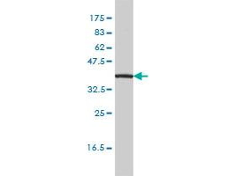 Western Blotting (WB) image for anti-Interleukin 11 Receptor, alpha (IL11RA) (AA 1-422), (full length) antibody (ABIN561471)