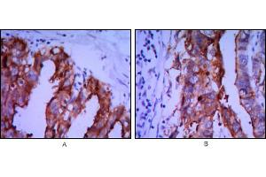 Image no. 1 for anti-Placental Alkaline Phosphatase (ALPP) antibody (ABIN968956)