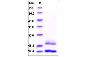 Image no. 1 for Cystatin E/M (CST6) (AA 1-149) protein (His tag) (ABIN2002849)