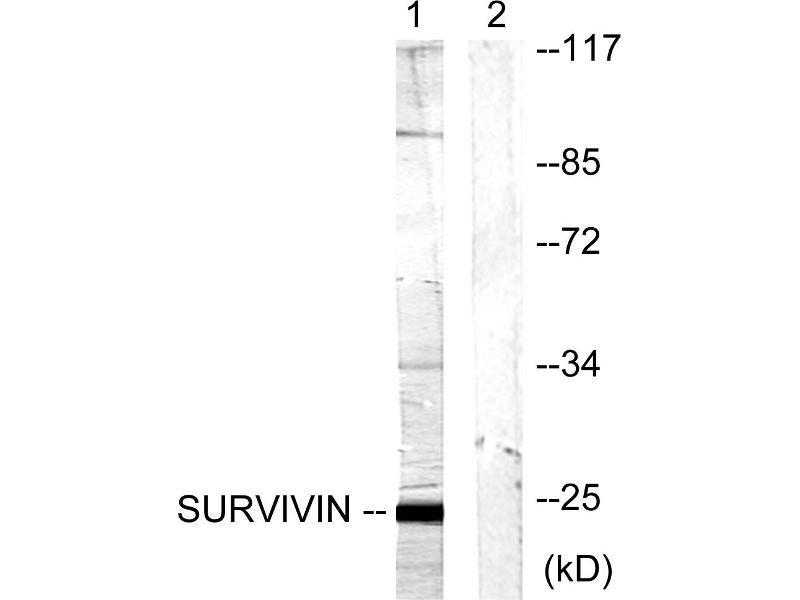 Western Blotting (WB) image for anti-BIRC5 antibody (Baculoviral IAP Repeat-Containing 5) (Thr117) (ABIN2163020)