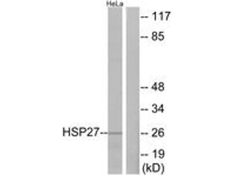 Western Blotting (WB) image for anti-Heat Shock 27kDa Protein 1 (HSPB1) (AA 48-97) antibody (ABIN1532899)