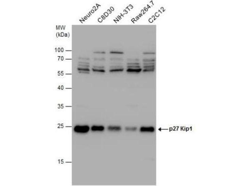 Western Blotting (WB) image for anti-Cyclin-Dependent Kinase Inhibitor 1B (p27, Kip1) (CDKN1B) (Center) antibody (ABIN442186)