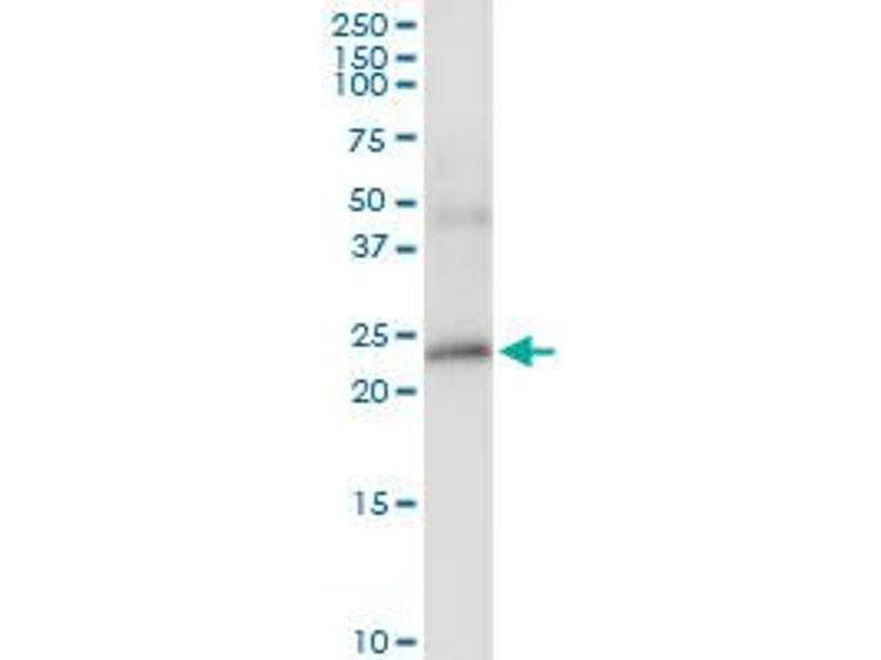 Immunoprecipitation (IP) image for anti-Betacellulin (BTC) (AA 1-178), (full length) antibody (ABIN513827)