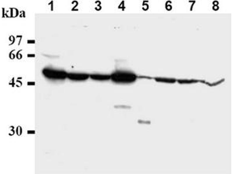 Western Blotting (WB) image for anti-CHEK1 antibody (Checkpoint Kinase 1) (ABIN487487)