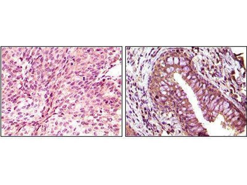 Immunohistochemistry (IHC) image for anti-EPH Receptor B6 antibody (EPHB6) (ABIN969479)