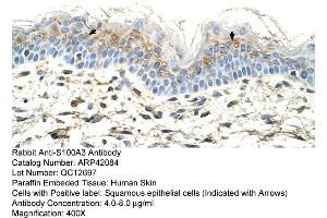 Image no. 1 for anti-S100 Calcium Binding Protein A3 (S100A3) (N-Term) antibody (ABIN2777134)