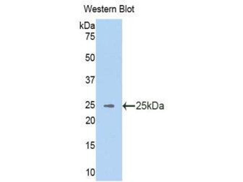 Western Blotting (WB) image for anti-Vav 3 Oncogene (VAV3) (AA 398-583) antibody (ABIN1860914)