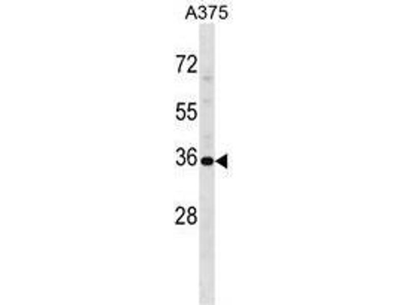 Western Blotting (WB) image for anti-USP12 antibody (Ubiquitin Specific Peptidase 12) (AA 221-251) (ABIN955485)