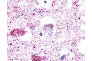 Immunohistochemistry (IHC) image for anti-Serotonin Receptor 4 antibody (HTR4) (3rd Cytoplasmic Domain) (ABIN271227)