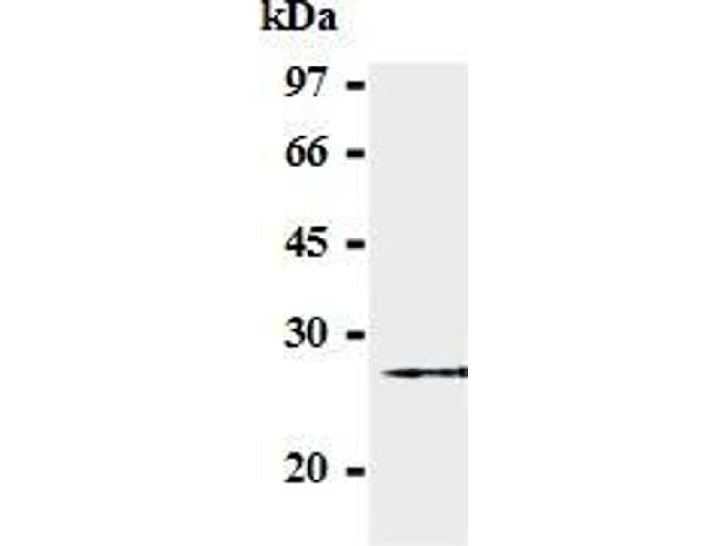 Western Blotting (WB) image for anti-SOCS3 Antikörper (Suppressor of Cytokine Signaling 3) (AA 2-44) (ABIN1504156)