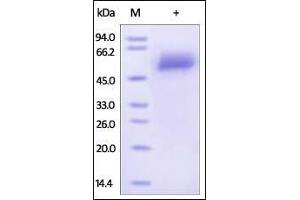 Image no. 1 for alpha-2-HS-Glycoprotein (AHSG) (AA 19-367) protein (His tag) (ABIN2181088)