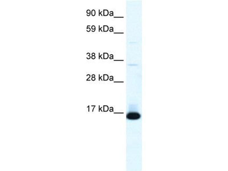 Western Blotting (WB) image for anti-Transcription Factor 21 (TCF21) (N-Term) antibody (ABIN2777930)