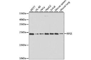 Image no. 2 for anti-Ribosomal Protein S5 (RPS5) antibody (ABIN6147225)