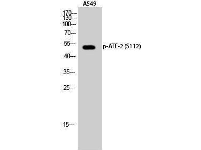 Western Blotting (WB) image for anti-Activating Transcription Factor 2 (ATF2) (pSer112) antibody (ABIN3181922)