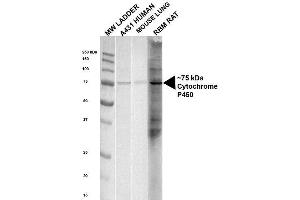 Western Blotting (WB) image for anti-P450 (Cytochrome) Oxidoreductase (POR) antibody (PerCP) (ABIN2482130)