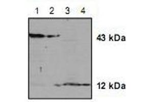 Western Blotting (WB) image for anti-Caspase 2, Apoptosis-Related Cysteine Peptidase (CASP2) antibody (ABIN222882)