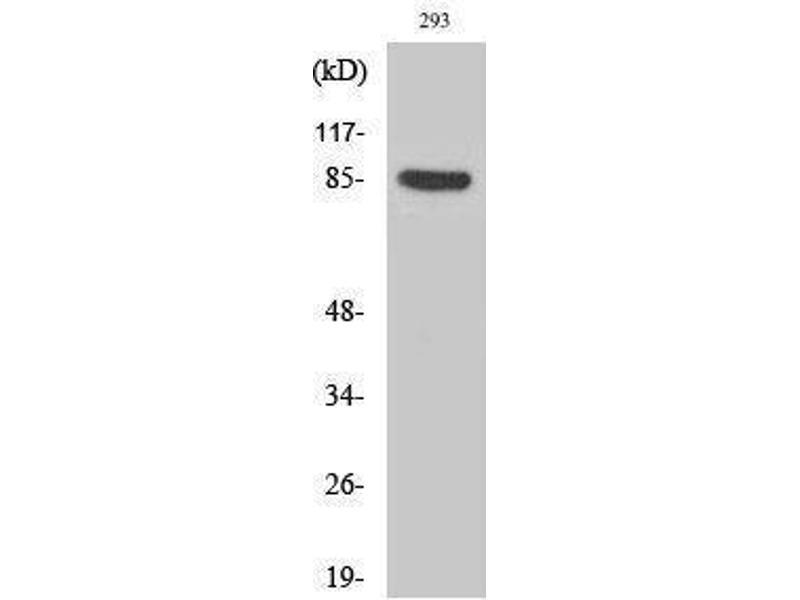 Western Blotting (WB) image for anti-Cortactin (CTTN) (pTyr466) antibody (ABIN3182724)