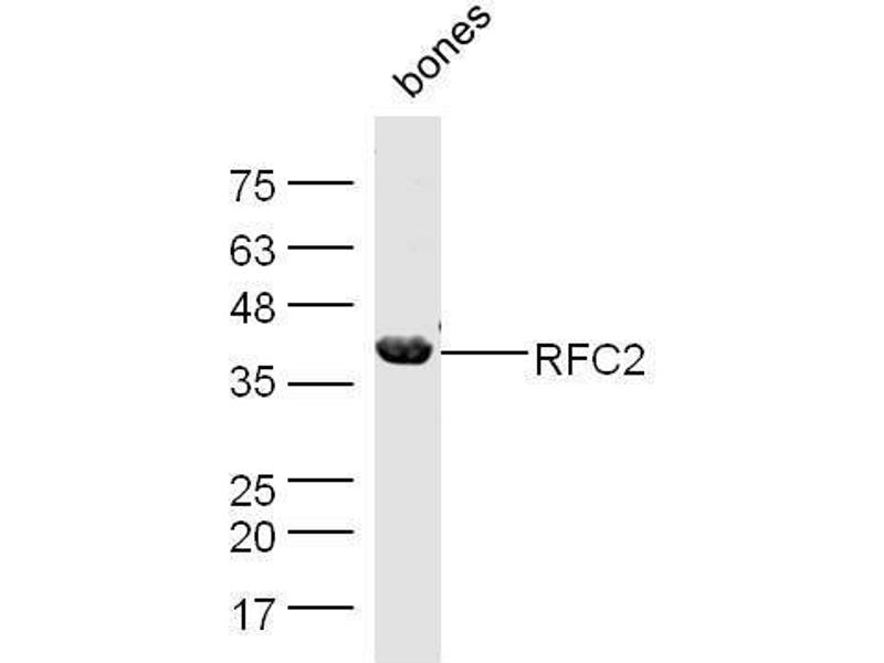 Western Blotting (WB) image for anti-Replication Factor C (Activator 1) 2, 40kDa (RFC2) (AA 325-354) antibody (ABIN1386502)