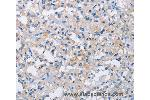 Immunohistochemistry (IHC) image for anti-ATPase, H+ Transporting, Lysosomal Accessory Protein 2 (ATP6AP2) antibody (ABIN2429593)