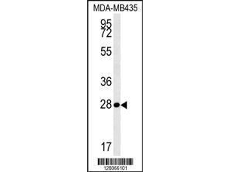 Western Blotting (WB) image for anti-Mitochondrial RRNA Methyltransferase 1 Homolog (S. Cerevisiae) (MRM1) (AA 80-109), (N-Term) antibody (ABIN654341)