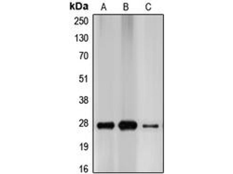 Western Blotting (WB) image for anti-Cyclin-Dependent Kinase Inhibitor 1B (p27, Kip1) (CDKN1B) (C-Term) antibody (ABIN2705080)