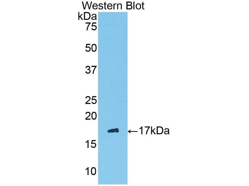 Western Blotting (WB) image for anti-Serpin Peptidase Inhibitor, Clade G (C1 Inhibitor), Member 1 (SERPING1) (AA 397-495) antibody (ABIN1858183)