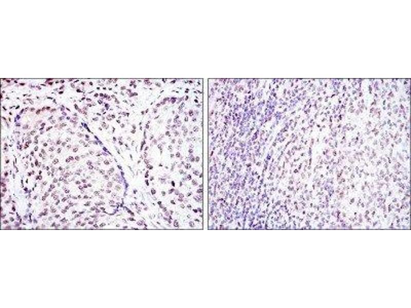 Immunohistochemistry (IHC) image for anti-cAMP Responsive Element Binding Protein 1 (CREB1) antibody (ABIN4300443)