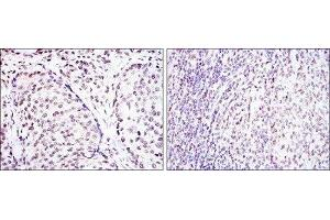 Immunohistochemistry (IHC) image for anti-cAMP Responsive Element Binding Protein 1 (CREB1) antibody (ABIN4300443)
