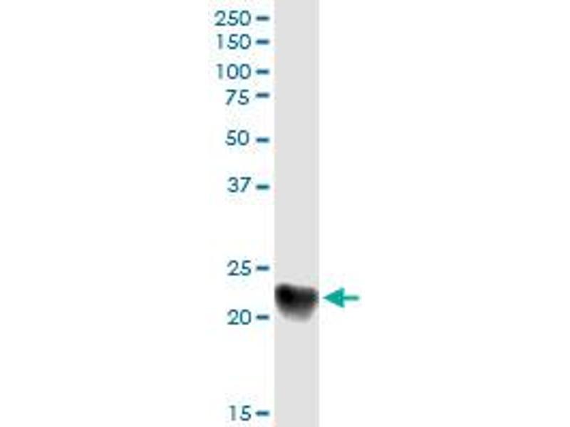 Immunoprecipitation (IP) image for anti-Complement Component 1, Q Subcomponent, C Chain (C1QC) (AA 1-245), (full length) antibody (ABIN513856)