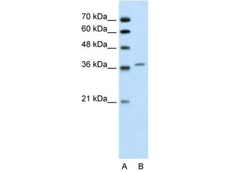 Western Blotting (WB) image for anti-Aminolevulinate Dehydratase (ALAD) (Middle Region) antibody (ABIN310192)