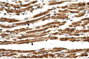 Image no. 3 for anti-N(alpha)-Acetyltransferase 16, NatA Auxiliary Subunit (NAA16) (Middle Region) antibody (ABIN2783552)