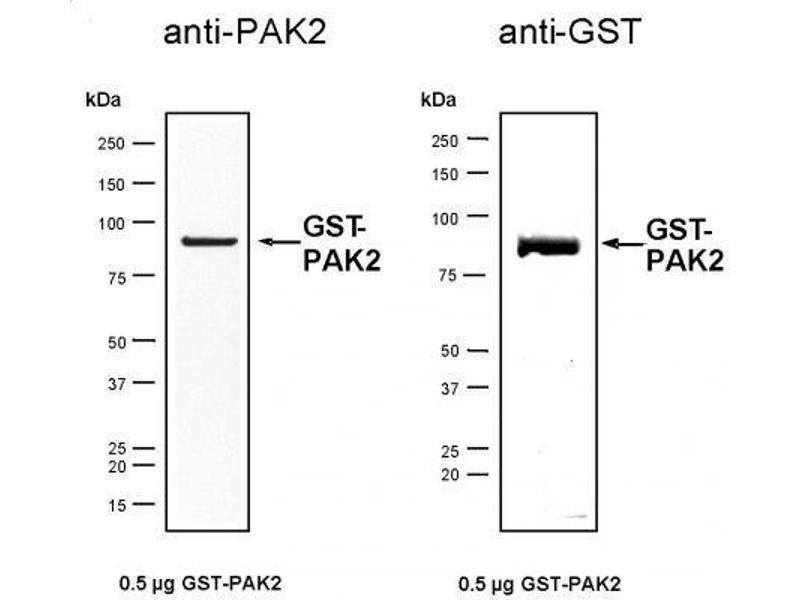 active human p21 activated kinase 2 pak2 protein gst. Black Bedroom Furniture Sets. Home Design Ideas
