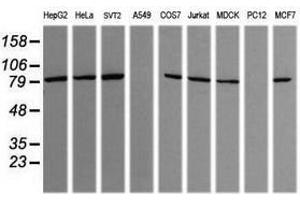 Image no. 4 for anti-SEC14 and Spectrin Domains 1 (SESTD1) antibody (ABIN1501065)