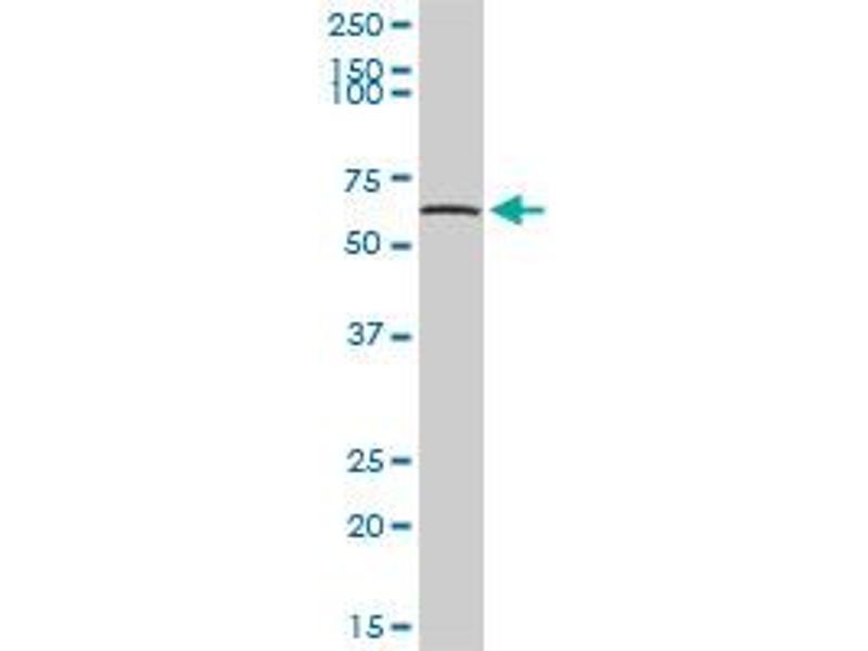 Western Blotting (WB) image for anti-Tripeptidyl Peptidase I (TPP1) (AA 1-563), (full length) antibody (ABIN947709)