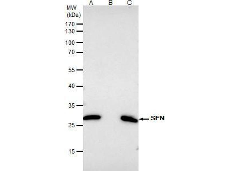 Immunoprecipitation (IP) image for anti-Stratifin Antikörper (SFN) (Center) (ABIN2854867)