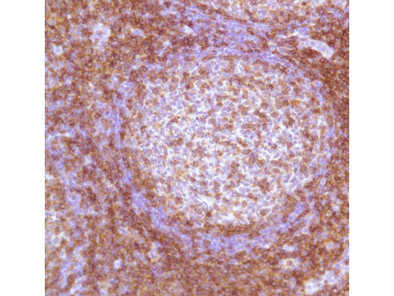 Immunohistochemistry (IHC) image for anti-CD4 Antikörper (CD4 Molecule) (Internal Region) (ABIN1687412)