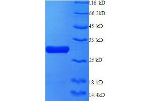 Image no. 1 for X-Ray Repair Complementing Defective Repair in Chinese Hamster Cells 6 (XRCC6) (AA 6-222), (partial) protein (His tag) (ABIN5712169)