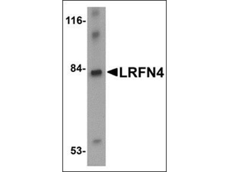 Image no. 2 for anti-Leucine Rich Repeat and Fibronectin Type III Domain Containing 4 (LRFN4) (C-Term) antibody (ABIN500192)