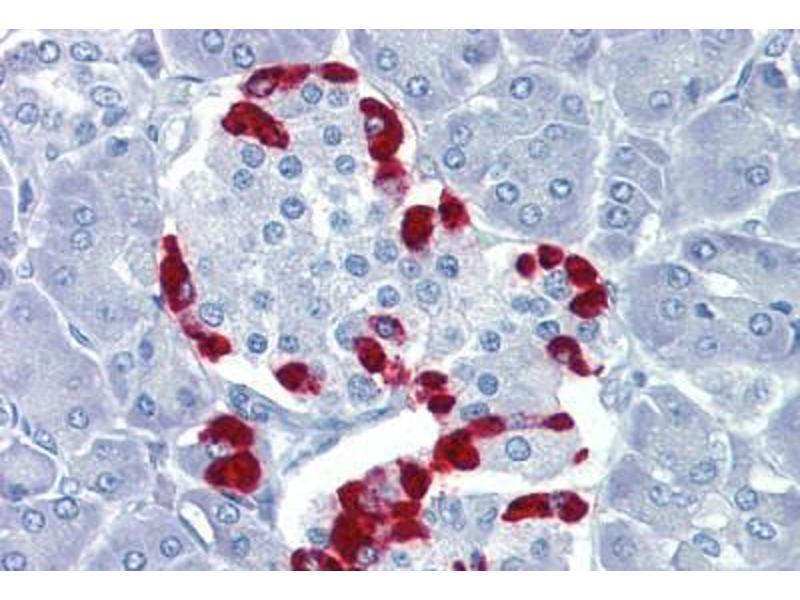 Immunohistochemistry (Paraffin-embedded Sections) (IHC (p)) image for anti-TEA Domain Family Member 4 (TEAD4) (C-Term) antibody (ABIN462208)