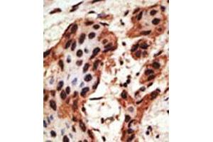 image for anti-Gap Junction Protein, beta 6, 30kDa (GJB6) (AA 95-124), (N-Term) antibody (ABIN357095)