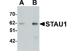 Image no. 1 for anti-Staufen, RNA Binding Protein, Homolog 1 (Drosophila) (STAU1) (C-Term) antibody (ABIN6656386)